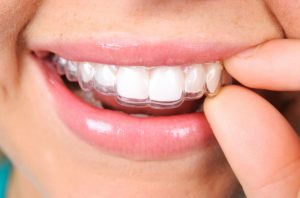 Why should I get Invisalign in Copperas Cove?