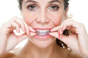 Invisalign in Copperas Cove Expectations.