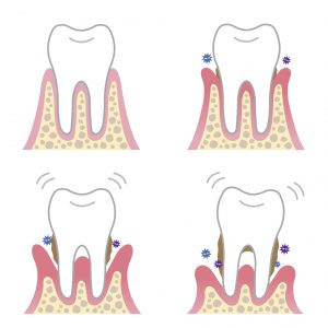 Gum disease can wreak havoc on your oral health, but your dentist in Copperas Cove explains the symptoms you should be aware of.