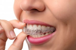 A woman removing her clear aligners.